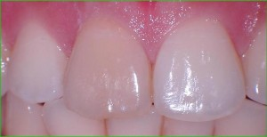Tooth BEFORE treatment with internal bleaching.