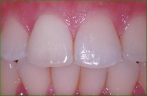 Tooth AFTER treatment with internal bleaching.